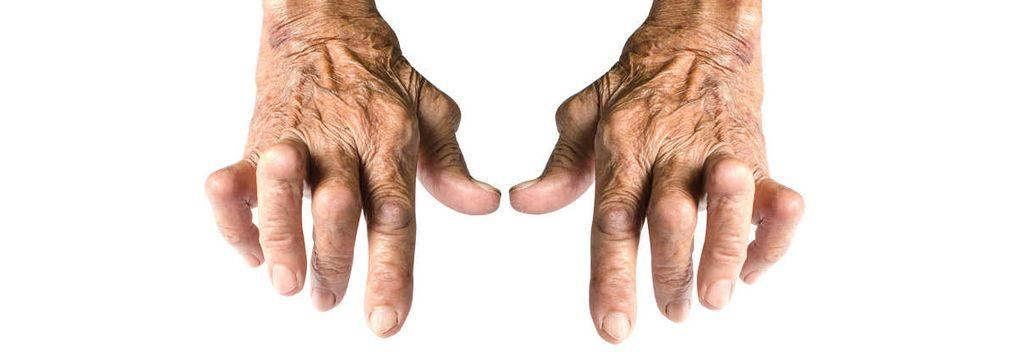 慢性関節リウマチの治療