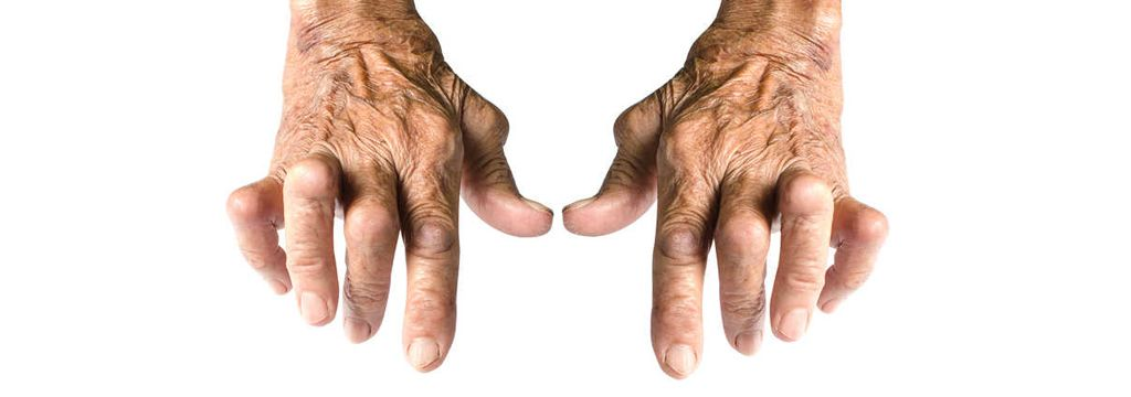 curar la artritis reumatoide